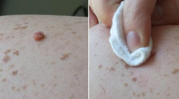 Skin tags are common soft skin growths, which in most cases appear on the neck, in the groin area, around the arms, around the breasts, or in the armpits. They are not a serious health threat, but they might be embarrassing or cause discomfort. The main c