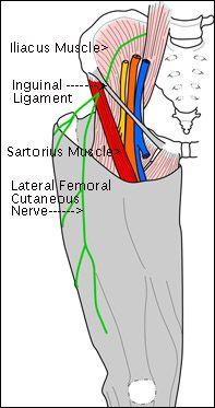 lat-fem-cut-nerve