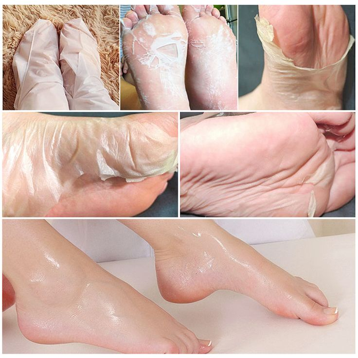 Foot Peel Mask -Free Shipping – onecurler