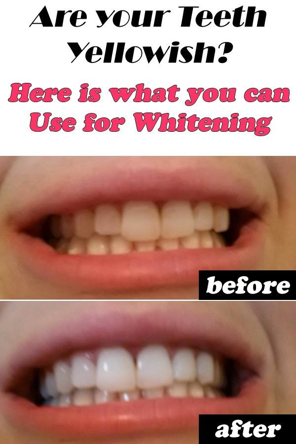 Are your Teeth Yellowish Here is what you can Use for Whitening. ==