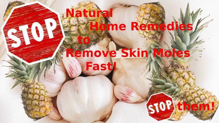 Ways to get rid of a skin mole at home fast and naturally https://www.youtube.com/watch?v=zn8Oa8I_DT4&t=2s Want to know easy, fast and natural ways to get rid of your skin moles at home? Well, click this link to watch a youtube explanation video about ski
