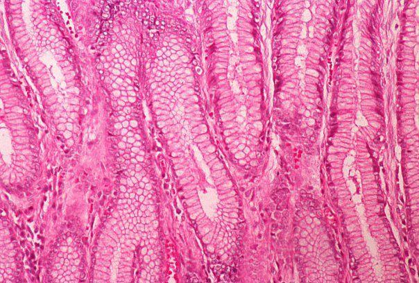 Basic Histology -- Columnar Epithelium, Stomach