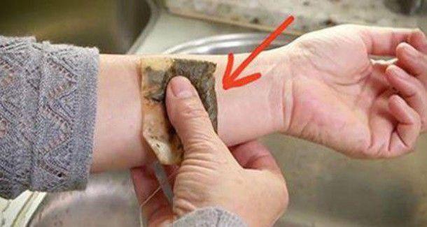 Ce qui se passe quand vous mettez un sachet de thé sur votre peau est tout…