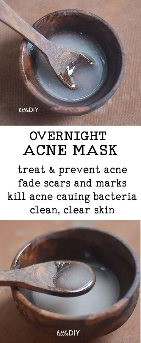 OVERNIGHT ACNE CLEARING MASK