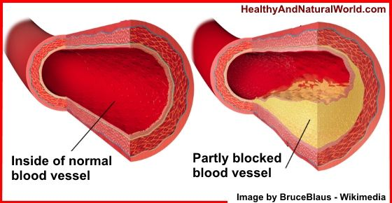 Here is a list of 12 very special foods that can help keep your arteries clean and unclogged
