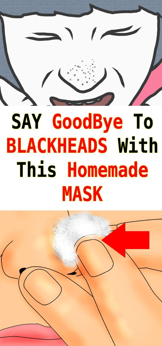 Get Rid Of Blackheads In 5 Minutes Applying This Mask