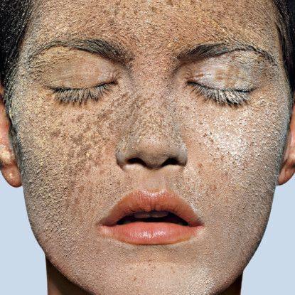 Léčba pigmentace, která funguje