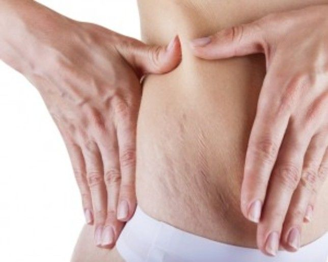 What REALLY Causes Stretch Marks  http://www.womenshealthmag.com/health/what-really-causes-stretch-marks