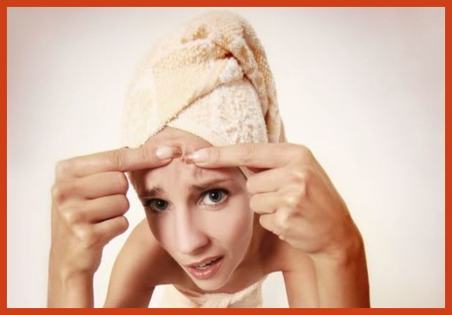 Homemade Acne Treatment - Adult Acne Treatment Options *** Continue with the details at the image link. #transformation