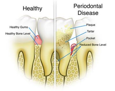 Tips to How Cure Periodontal Disease