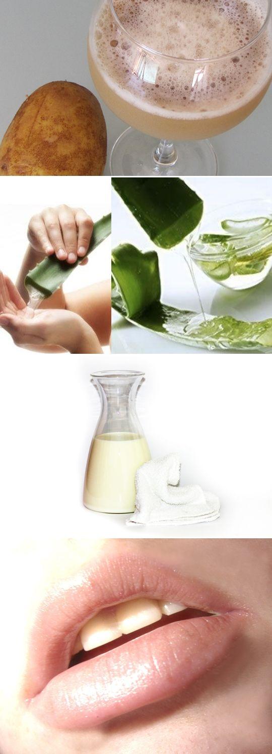 3 natural remedies for sunburned lips | Inspire Beauty Tips .... potato juice, aloe vera gel, or milk !