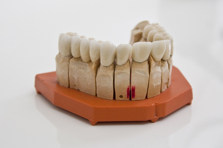 Example of final teeth straight from the dental lab