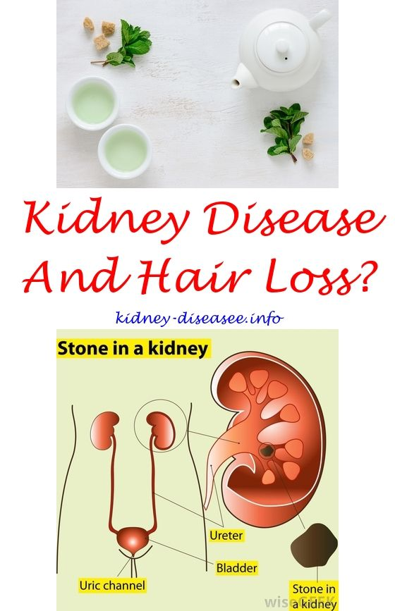 kidney infection disease - what is kidney disease.can kidney failure cause sepsis 1788280060