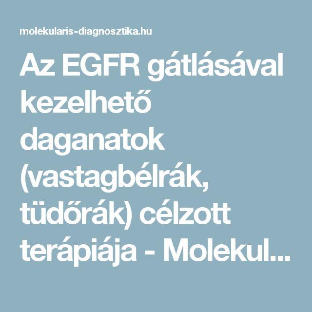 Az EGFR gátlásával kezelhető daganatok (vastagbélrák, tüdőrák) célzott terápiája - Molekuláris diagnosztika