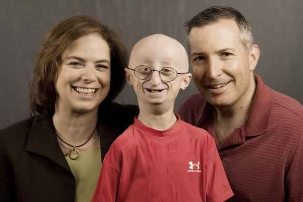 Seventeen-year-old Sam Berns died on Friday from complications due to Progeria, a rare genetic disease that appears to bring on early aging. | Sam Berns, The Brave Teenager Who Was The Face Of Progeria �014 And The Patriots' Honorary Captain �014 Has Died