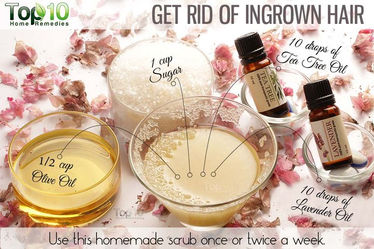 Home remedy to remove ingrown hair naturally