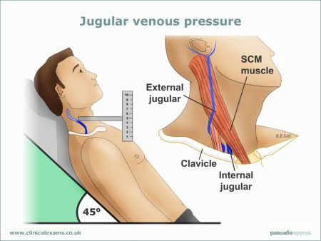 Jugular-Venous-Pressure-web-large(800x600)