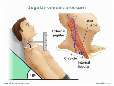 Jugular-Venous-Pressure-web-large(800x600)