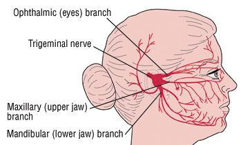 """What Is It? Trigeminal neuralgia, also known as tic douloureux, is a painful disorder of a nerve in the face called the trigeminal nerve or fifth cranial nerve. There are two trigeminal nerves, one on each side of the face. These nerves are responsible for detecting touch, pain, temperature and pressure sensations in areas of the face between the jaw and forehead.  Trigeminal Neuralgia (Tic Douloureux) People who have trigeminal neuralgia usually have episodes of sudden, intense, """"stabbing""""…"""