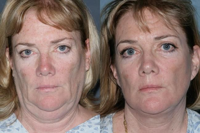 Instant Face Lift Neck Lift Tapes Facelift Necklift - YouTube