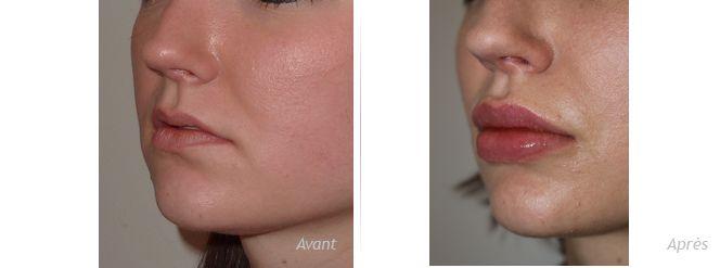 augmentation lèvres  permalip 5 mm en haut et bas résultat avant après