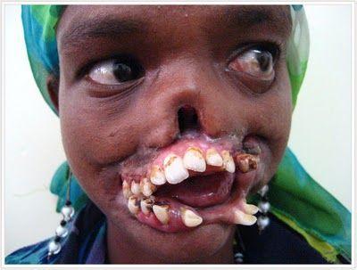noma disease. gangrene of the face.