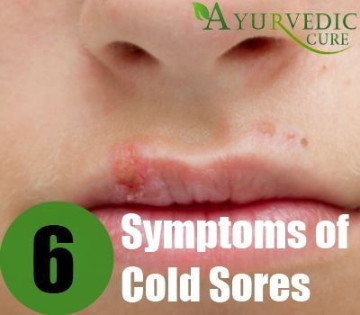 Symptoms Of Cold Sores On Lips
