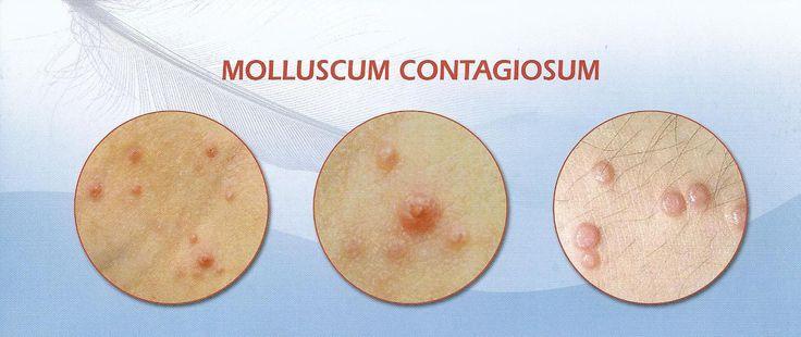 90 Best Dermatology Images On Pinterest  Medicine, Atopic -5110