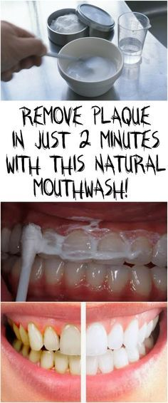 REMOVE PLAQUE IN JUST 2 MINUTES WITH THIS NATURAL MOUTHWASH!