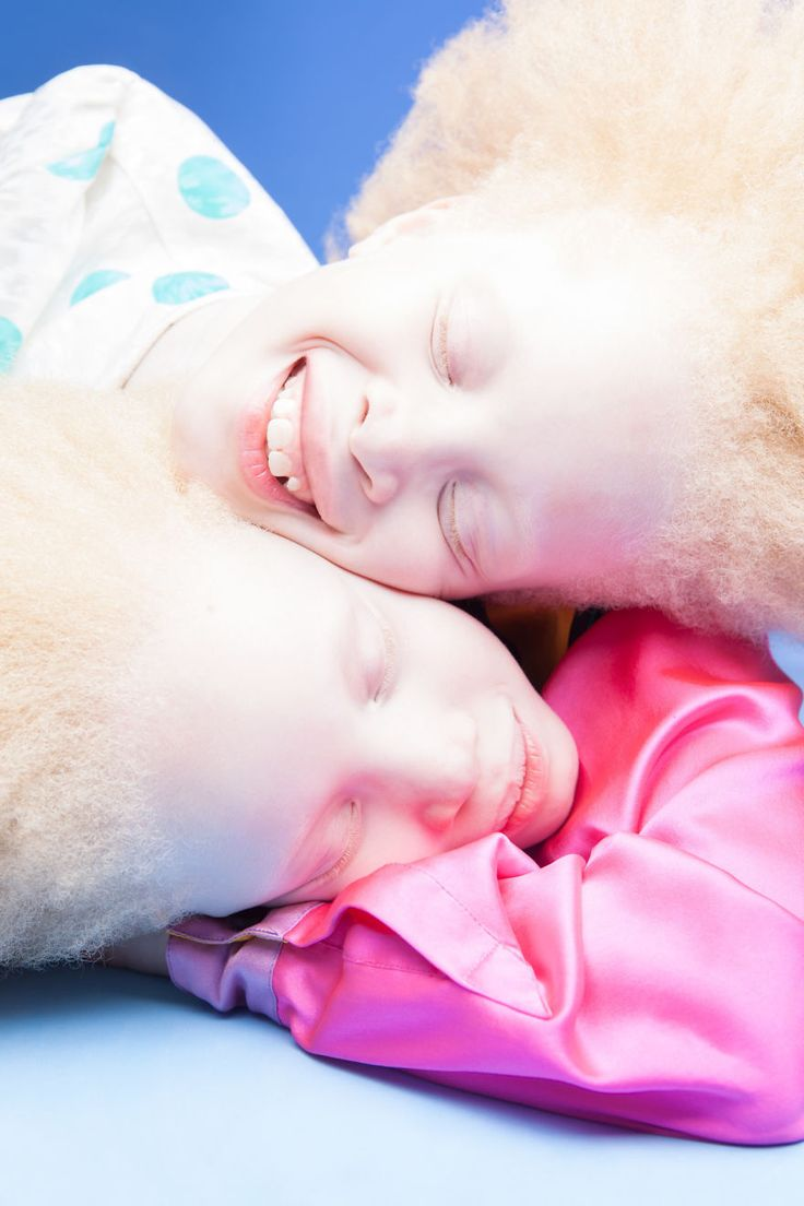 Albino Twins From Brazil Are Taking The Fashion Industry By Storm With Their Unique Beauty | Bored Panda