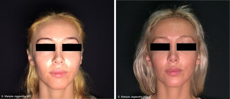Facial asymmetry (here, entire right side of face is smaller than left) can be corrected beautifully with Sculptra®.