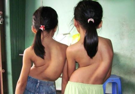 Trẻ bị Cong vẹo cột sống, ưỡn cột sống, gù - Tìm với Google