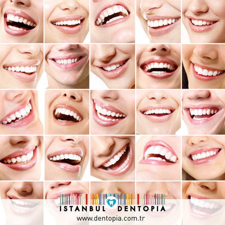 Gülüş Dizaynı Estetik diş hekimliği, temelinde diş hekimliğinin bütün branşları kapsamaktadır. Estetik diş hekimleri, bireyin ağızdaki sağlık problemlerini çözdükten sonra hastanın yüzüne bakıp estetik eksiklikleri saptayarak tam fonksiyonel bir gülüş dizayn etmektedir. #gülüşdizaynı www.dentopia.com.tr