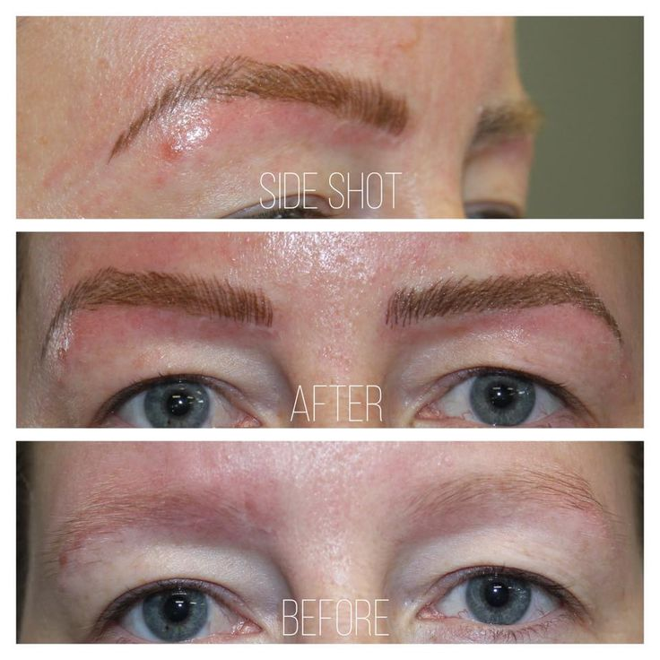 Microblading eyebrows All supplies used are from Perpetual Permanent Makeup. Best stuff I have ever used 🤙🏼✌🏼☺️ For all my Permanent Makeup Technicians in Canada if you want fast shipping with the best price around contact my sponsor. 🙌🏼 @perpetualp  www.perpetualpermanentmakeup.com  1.888.944.8841 604.285.0625 Nan