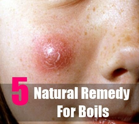 Natural Remedy For Boil On Buttocks