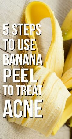 5 Simple Steps To Use Banana Peel To Treat Acne | HealthXP