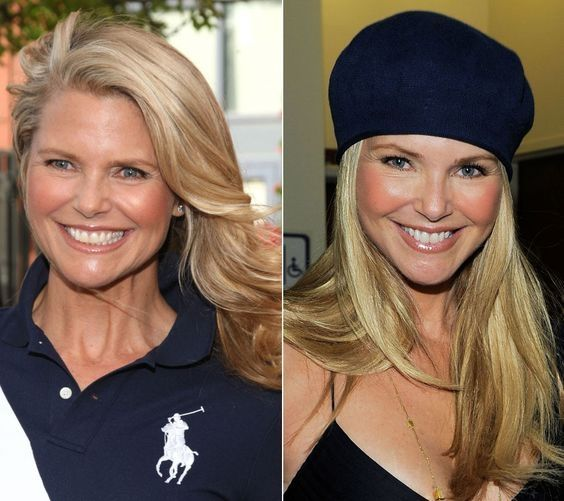 Christie Brinkley Christie Brinkley Plastic Surgery And Celebrity Standard Insurance Lady Face Lift