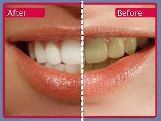Curved Teeth Whitening Products Articles #oralheal…
