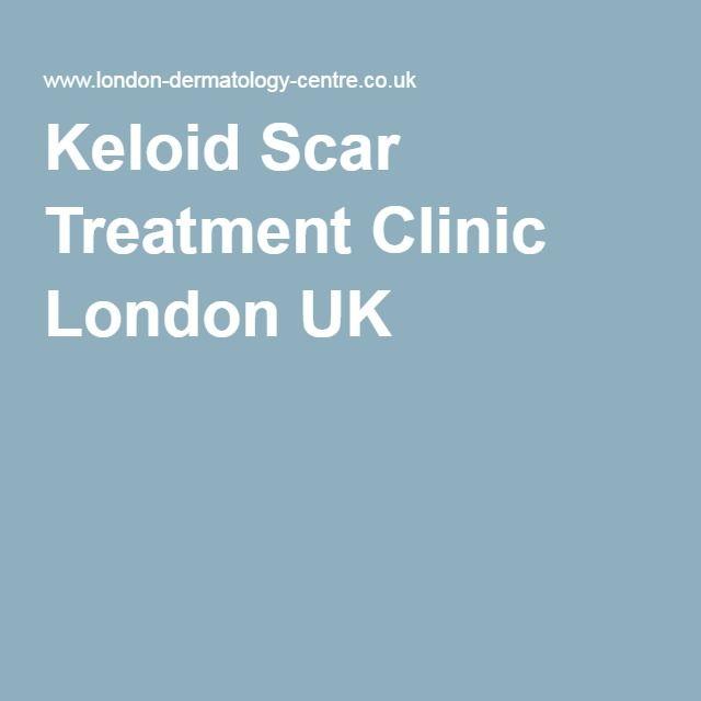 Keloid Scar Treatment Clinic London UK