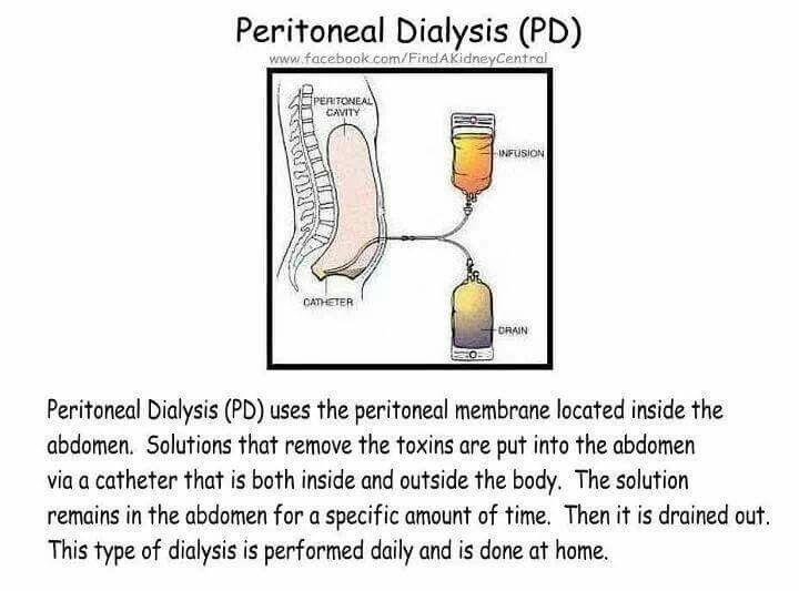 Pin by Lauren Sanders on metabolic Peritoneal dialysis