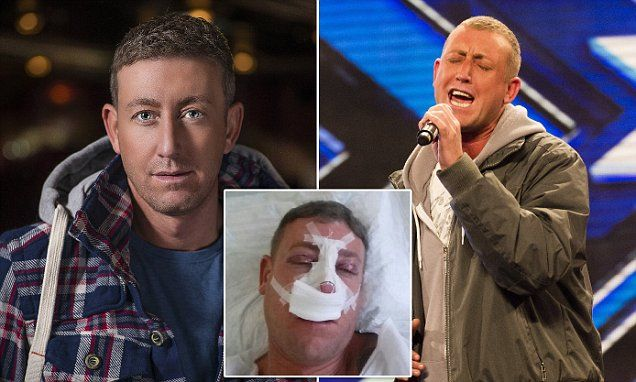 X Factor's Christopher Maloney spent £60k on surgery due to trolls
