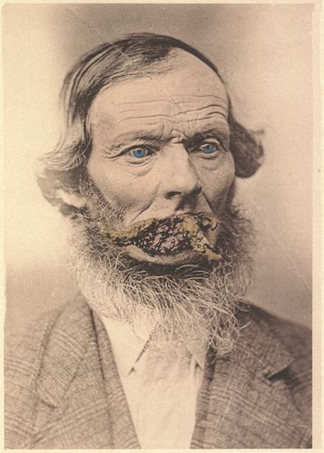 Unidentified photographer/creator   E.H.C., age 58: Cornua Cutanea   1880-1885 (ca) Collotype, hand-coloured Private collection of John Wood  LL/37721 PATIENT OF Dr. Geo. F. French, of Minneapolis, Minn. In medical literature we find many accounts of human horns springing from various portions of the body. These cases create surprise and wonder at first thought.