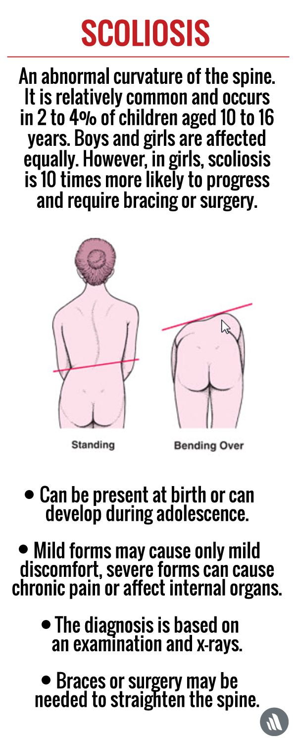 Mild Scoliosis Usually Causes No Symptoms Sometimes The Back Becomes Sore Or Stiff After The Child Sits Or Stand Scoliosis Childrens Health Breathing Problems