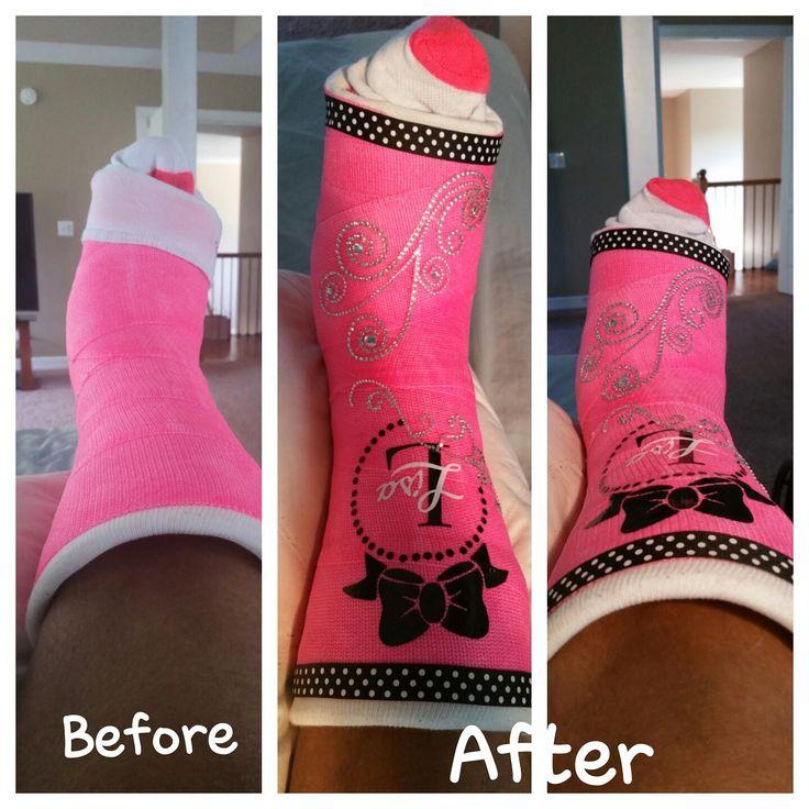 1000 ideas about leg cast on pinterest crutches arm for Arm cast decoration ideas