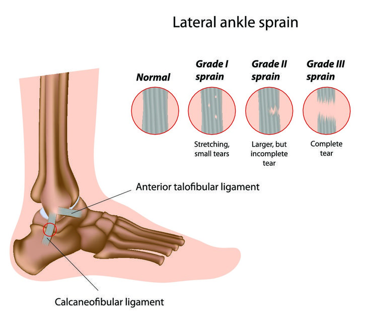 Ankle sprains are extremely common. The severity of an #anklesprain depends on how much of the ligament tears, ranging from grade 1 (mild) to grade 3 (complete). Learn more from IASM about them and how they're treated here.