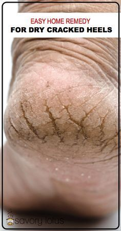 Easy-Home-Remedy-for-dry-Cracked-Heels-www.savorylotus.com_.001 (1)