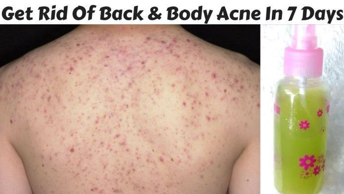 How To Get Rid Of Body Acne Acnescarsremedies Body Acne Back Acne Treatment Acne Treatment At Home