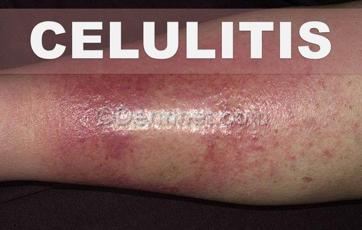 ☞ Remedios caseros para la celulitis infecciosa – Como eliminar zonas ro...