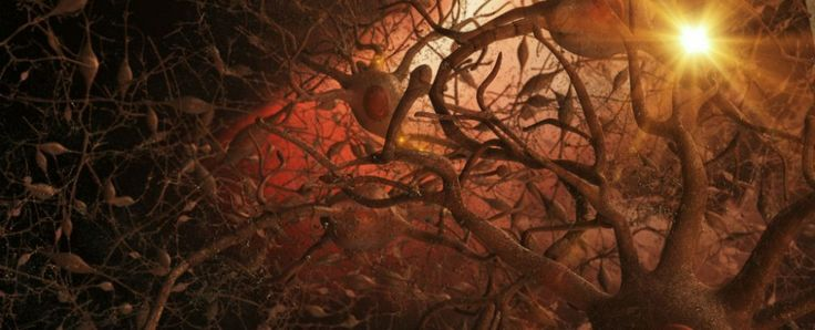 Australian researchers have come up with a non-invasive ultrasound technology that clears the brain of neurotoxic amyloid plaques - structures that are responsible for memory loss and a decline in cognitive function in Alzheimer's patients. If a...