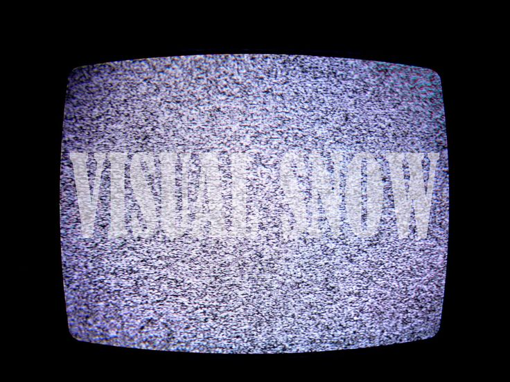 Visual snow is a rare condition that causes a person to see static or snow in their vision field. Learn about visual snow, treatment, symptoms, and more.